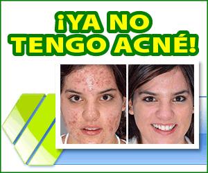 Derminax - acné